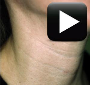 Lineas en el cuello adelgazar y