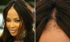 La máscara para los cabellos con dimeksidom para el crecimiento de los cabello de la foto antes y de